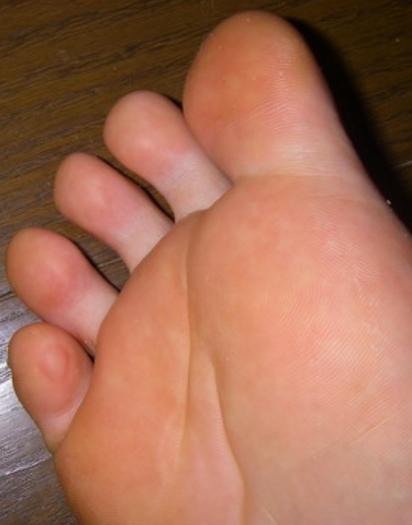 まず・・足の裏や指などが「水ぶくれ」になる順番